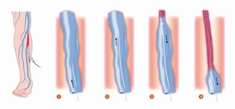 Κιρσοί Laser Θεραπεία Animation