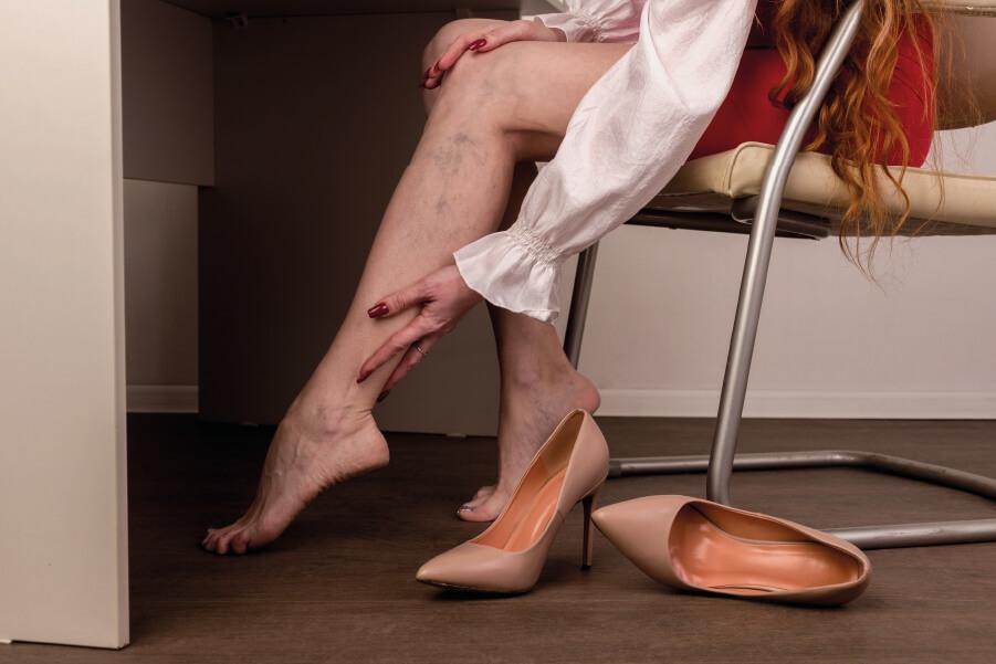 Ευρυαγγείες στα πόδια: αίτια και σωστή αντιμετώπιση
